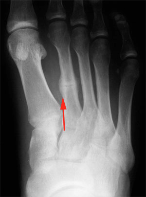 http://www.injuryupdate.com.au/injury-foot-ankle-foot-stress-fracture_files/stacks_image_6084.png